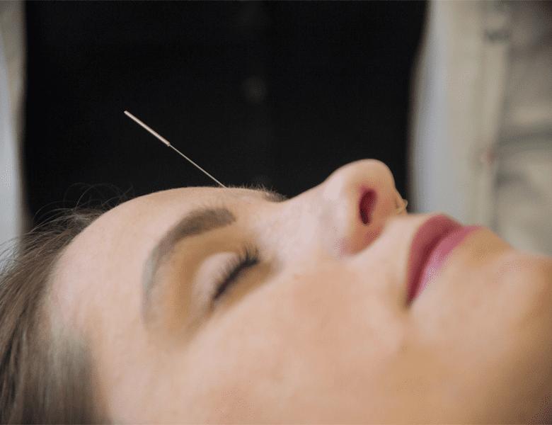 acupuntura-fisiologic